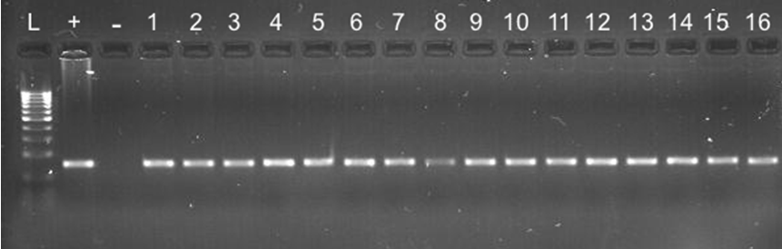 Electrophoresis gel showing 100bp DNA ladder